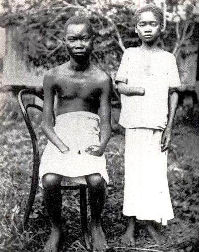 História de dor na África: as barbaridades da Bélgica no Congo - ANF -  Agência de Notícias das Favelas |